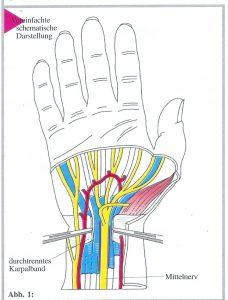 Kirurgjia e dorës